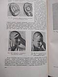 Восстановительная хирургия 2 тома. Н.А.Богораз. Медгиз. 1948год. 1949 год, фото 3