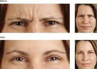 Диспорт Хмельницкий Морщины вокруг глаз