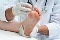 Профилактика болезней ног