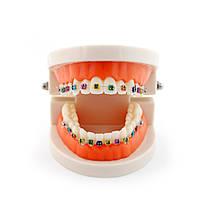 Модель зубов демонстрационная с брекетами