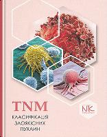 TNM класифікація злоякісних пухлин.  Шевченко А.І.(за ред.)