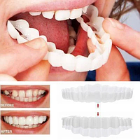 Съемные ВЕРХНИЕ виниры элайнеры Veneers Snap-on smile | виниры для зубов | накладные зубы, фото 1
