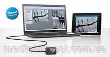 Радиовизиограф цифровой VistaRay 7  (Durr Dental)