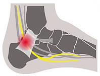 Боль в лодыжке – последствие синдрома предплюсневого канала