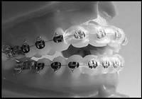 LG1.Защитные ортодонтические силиконовые полоски Ortho-LipGuard