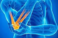 Повреждения локтевого нерва: причины и лечение