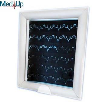 Негатоскоп медичний НМ-1LED