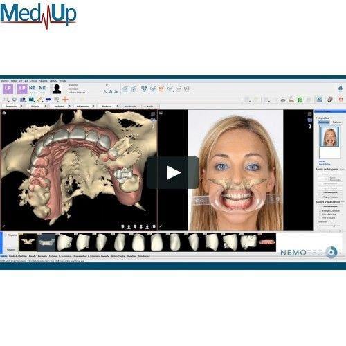 NemoSmile Design 3D