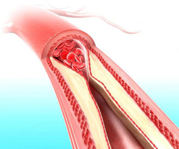 Нарушение кровообращения: как распознать и предотвратить осложнения