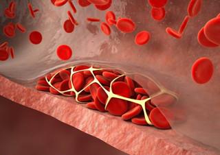 Эмболия и тромбоз