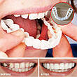 Съемные Виниры TOOTH COVER, фото 4