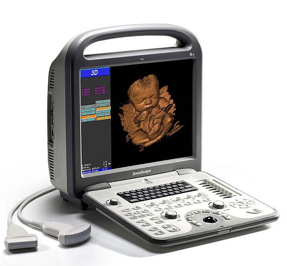 Ультразвуковой сканер Sonoscape S8