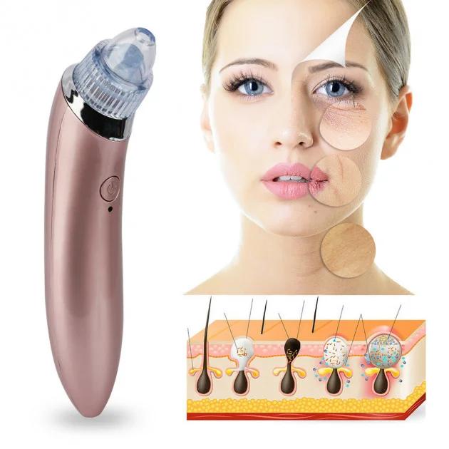 Аппарат вакуумная чистка лица купить аппарат женское белье венус оптом