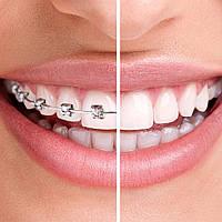 Ортодонтия как отдельное направление в стоматологии.