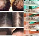 Сыворотка Active против выпадения волос ампулы для роста и укрепления волос,Германия, фото 8