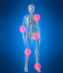 Почему болят суставы