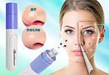 Вакуумный очиститель пор лица Spot Cleaner, Pore Cleaner прибор для чистки пор лица, фото 5