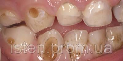 Кариес у детей: как сохранить здоровыми зубы ребенка