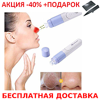 Аппарат вакуумный очиститель лица, Вакуумный очиститель SPOTCLEANER Face Pore Cleaner