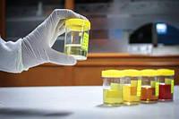 Аминокислоты в моче: экспертное количественное исследование