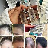 Сыворотка Active против выпадения волос ампулы для роста и укрепления волос,Германия, фото 4