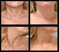 RF технологии лифтинг кожи и липолиз лица и тела