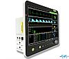 Монитор пациента ветеринарный PM6800V с принтером, Да, Да, Да, Да, Да, Да, Да, Опция
