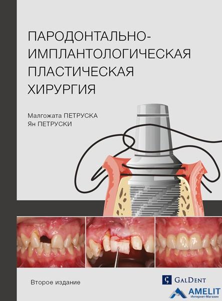 """Книга """"Пародонтально-імплантологічна пластична хірургія. Друге видання"""""""