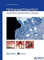 """""""Периимплантит: Этиология, диагностика и лечение"""""""