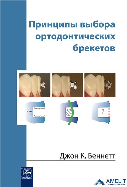 """Книга """"Принципи вибору брекетів ортодонтичних"""""""
