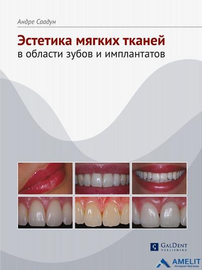 """Книга """"Эстетика мягких тканей в области зубов и имплантатов"""""""