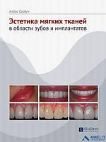 """Книга """"Естетика м'яких тканин в області зубів та імплантатів"""""""