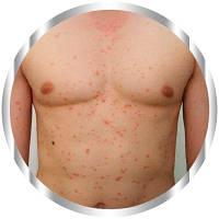 Псоріаз: види, симптоми і особливості лікування захворювання