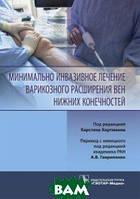 Хартманн К. Минимально инвазивное лечение варикозного расширения вен нижних конечностей