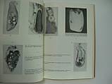Заболевания желчного пузыря и желчных путей (б/у)., фото 5