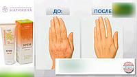 Крем для рук Probio 75 мл (заживляет, раны, дерматит, аллергия, шелушение, крапивница, трещины, пигментация)