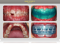 Патология положения зубов и прикуса лечится с применением трейнера по назначению врача ортодонта или другого стоматолога. Все трейнеры оригинального качества доступны в нашем интернет-магазине, обращайтесь!