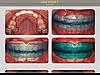 trainers.com.ua/photos - клинические случаи лечения патологий прикуса и положения зубов с помощью трейнеров в нашей фотогалерее.