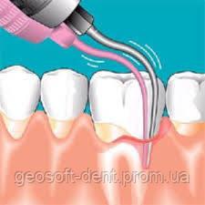 """""""Оптимизация эндодонтического лечения зубов с помощью внутриканального электрофореза"""""""