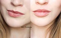 Збільшувач губ Fullips – засіб тренажер для збільшення губ, три розміри S, m, L, фото 1