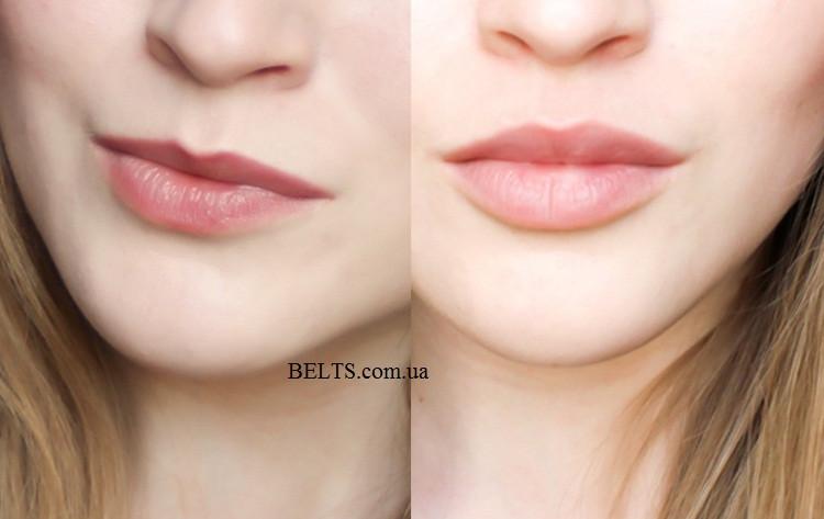 Збільшувач губ Fullips – засіб тренажер для збільшення губ, три розміри S, m, L