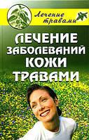 Лечение заболеваний кожи травами