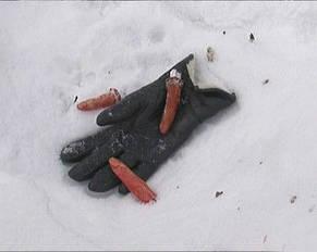 Отрубленные пальцы , фото 2