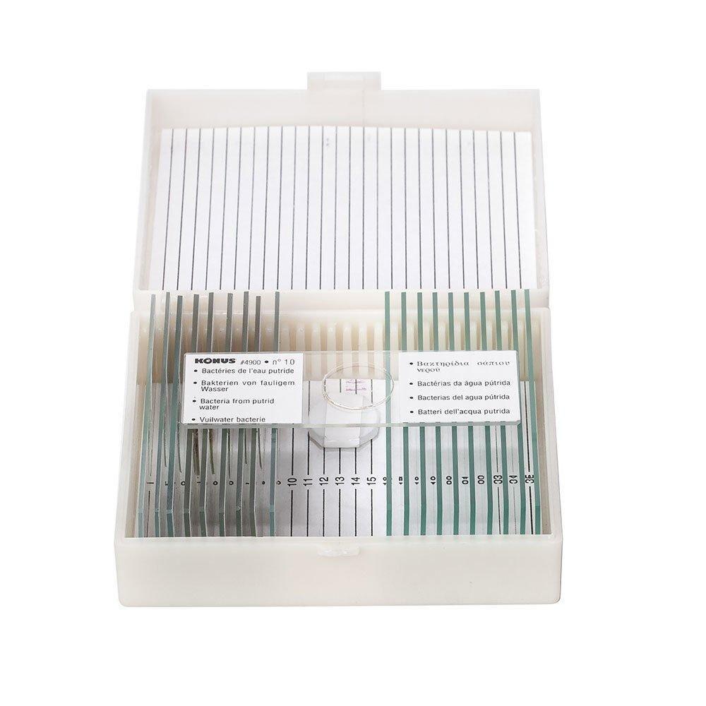 Набор микропрепаратов Konus Человеческое тело: Патологические ткани 10 шт. (4915)