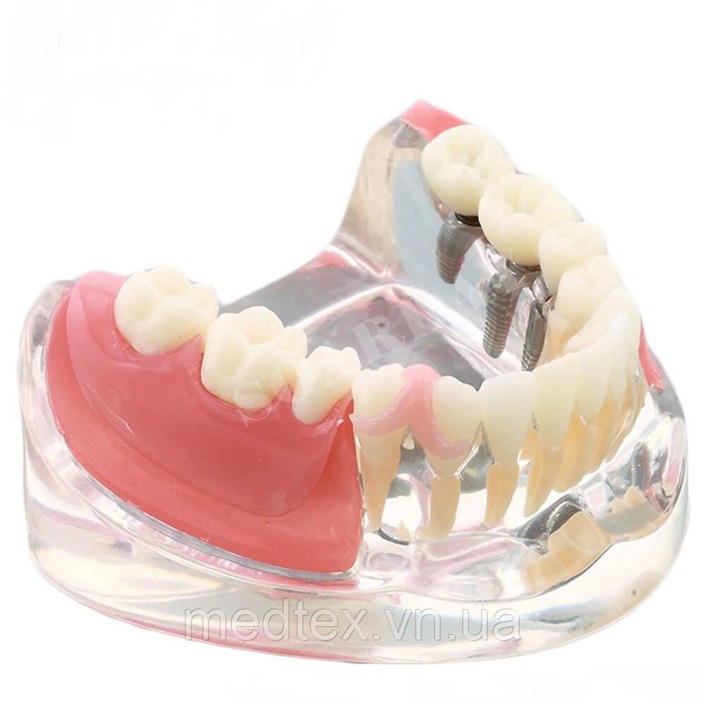 Модель зубов имплантант и реставрация моляры