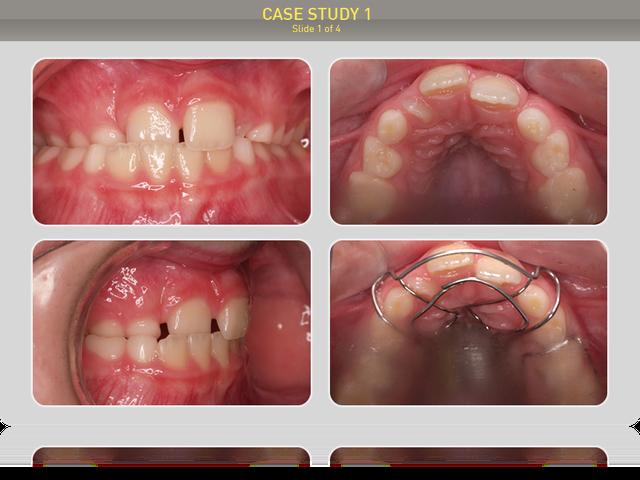 Ребенку 7 лет, первоначальный диагноз: 1 клас по Энглю, перекрестный прикус,обратное перекрытие правой половины верхней челюсти, места для латерального резца спава нет, слева - мало.