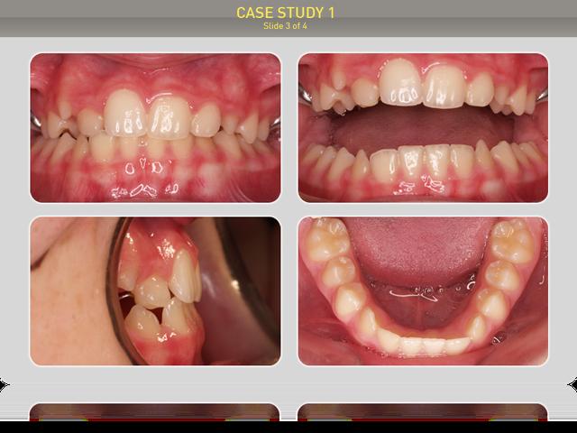 Результат лечения после расширения верхней челюсти, устранения обратного перекрытия и регулярного ношения трейнеров.