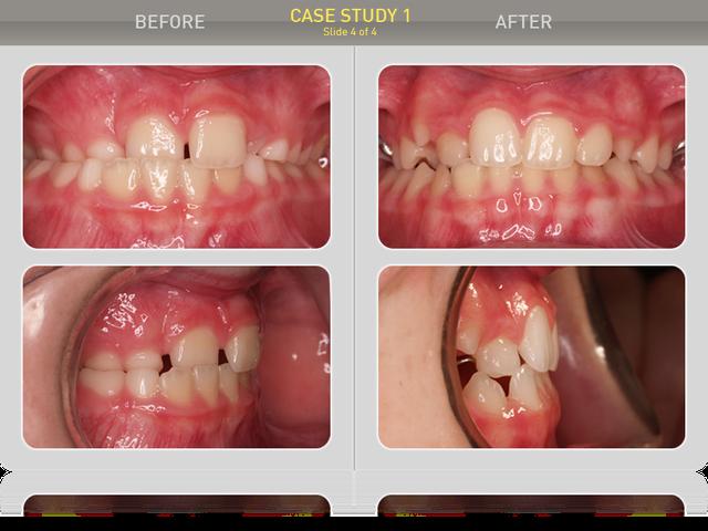 Результаты лечения после 18 месяцев. Прикус ортогнатический, перекрытие - норма. Пациент результатом доволен, ношение аппарата еще продолжается.