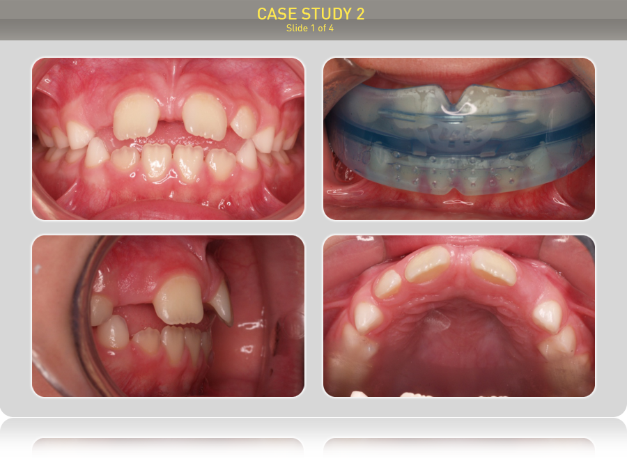 Ребенку 7 лет. Предложено лечение преортодонтическим трейнером Т4К голубой Soft (мягкий), Myobrace T3, трейнер І-2.