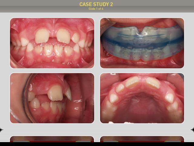 Ребенку 7 лет. Диагноз: открытый прикус, диастема - 4мм, вредная привычка прокладывать язык между зубами, ротовое дыхание.